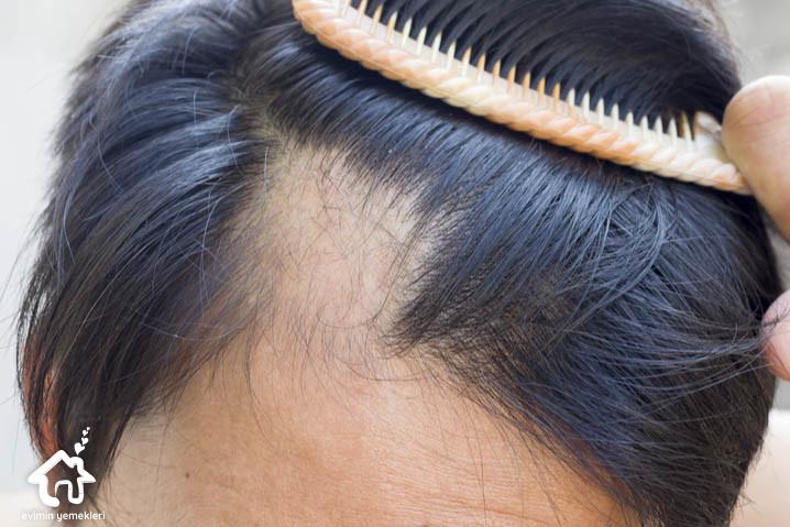Saç Sorunlarına Doğal Çözümler ile ilgili bilgiler